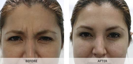 how to get rid of wrinkles between your eyebrows