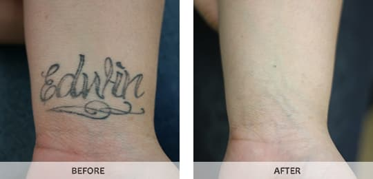 Laser tattoo removal in bronx westchester new york ny by for Laser tattoo removal manhattan